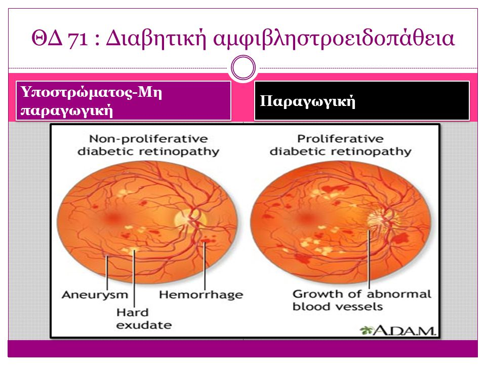 ΘΔ 71 : Διαβητική αμφιβληστροειδοπάθεια