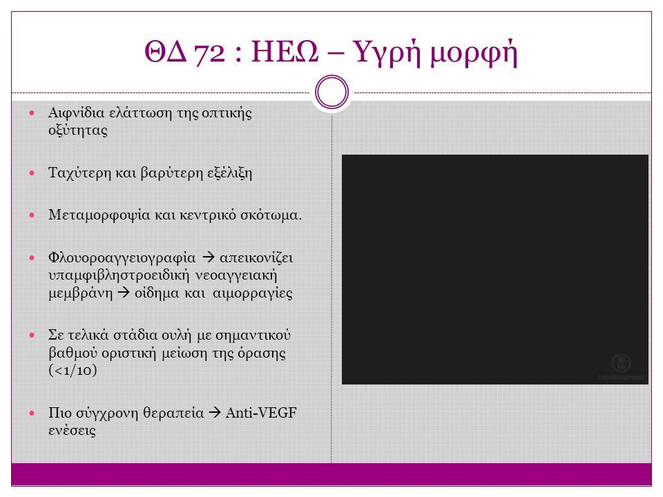 ΘΔ 72 : ΗΕΩ – Υγρή μορφή Αιφνίδια ελάττωση της οπτικής οξύτητας