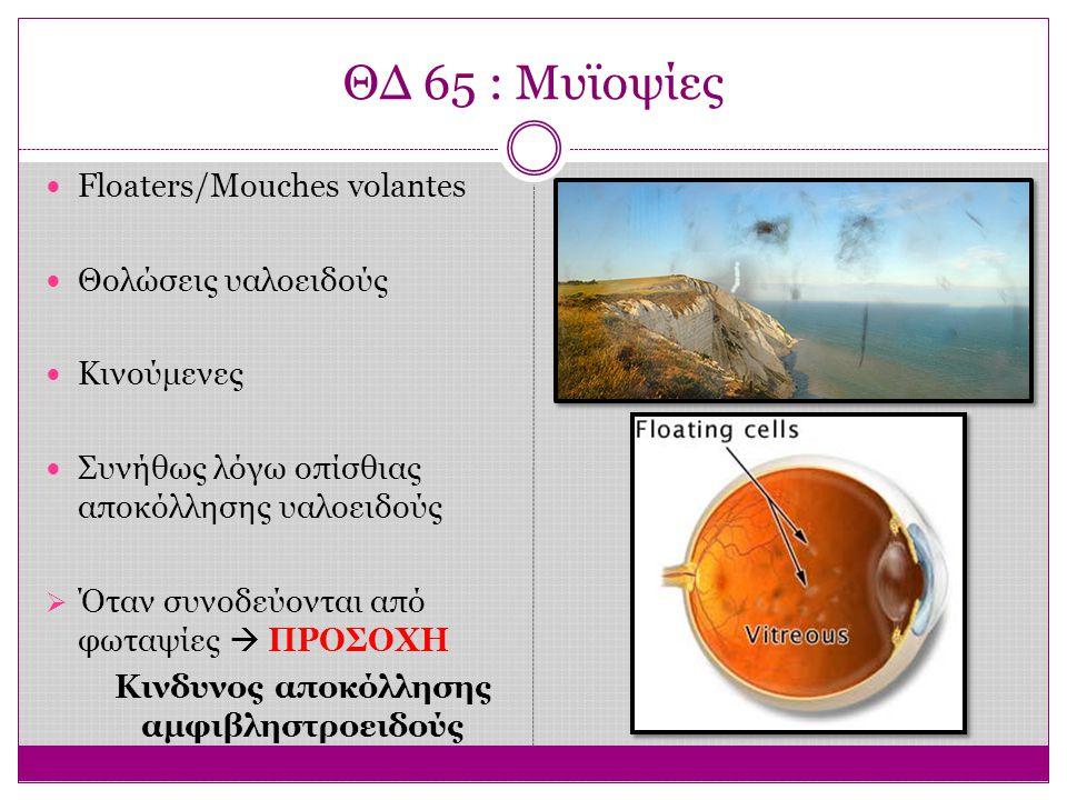 ΘΔ 65 : Μυϊοψίες Floaters/Mouches volantes Θολώσεις υαλοειδούς