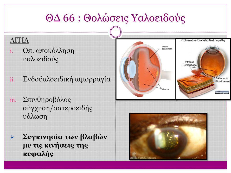 ΘΔ 66 : Θολώσεις Υαλοειδούς