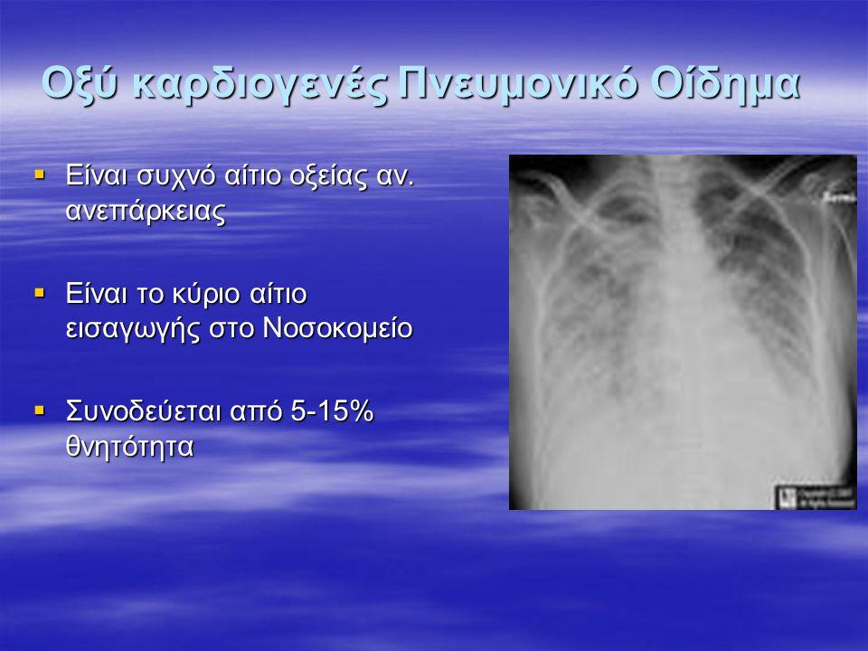 Οξύ καρδιογενές Πνευμονικό Οίδημα