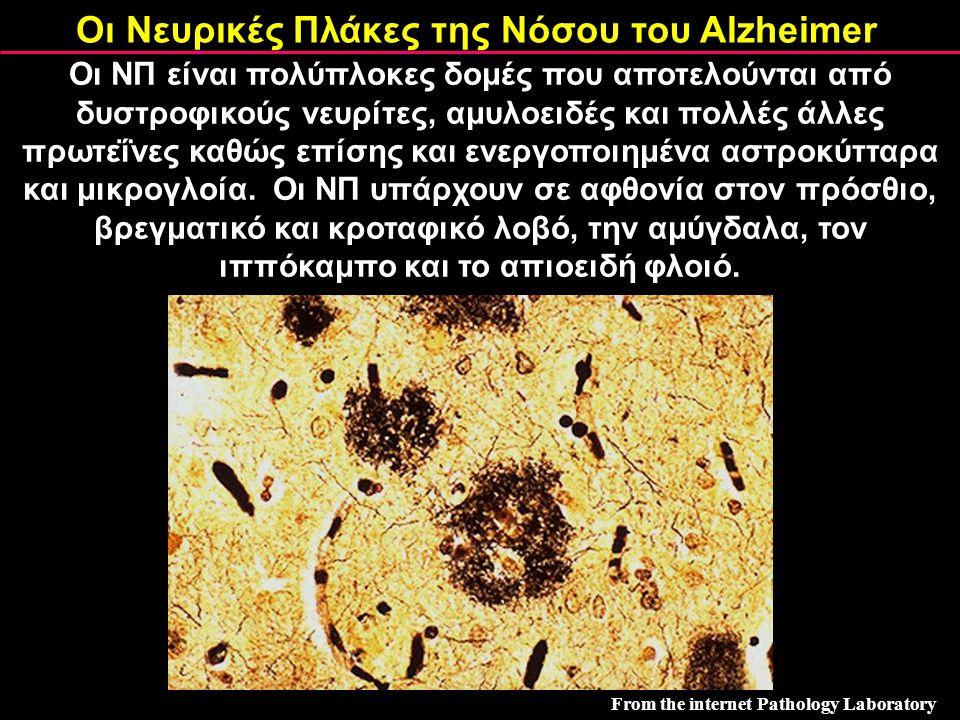 Οι Νευρικές Πλάκες της Νόσου του Alzheimer