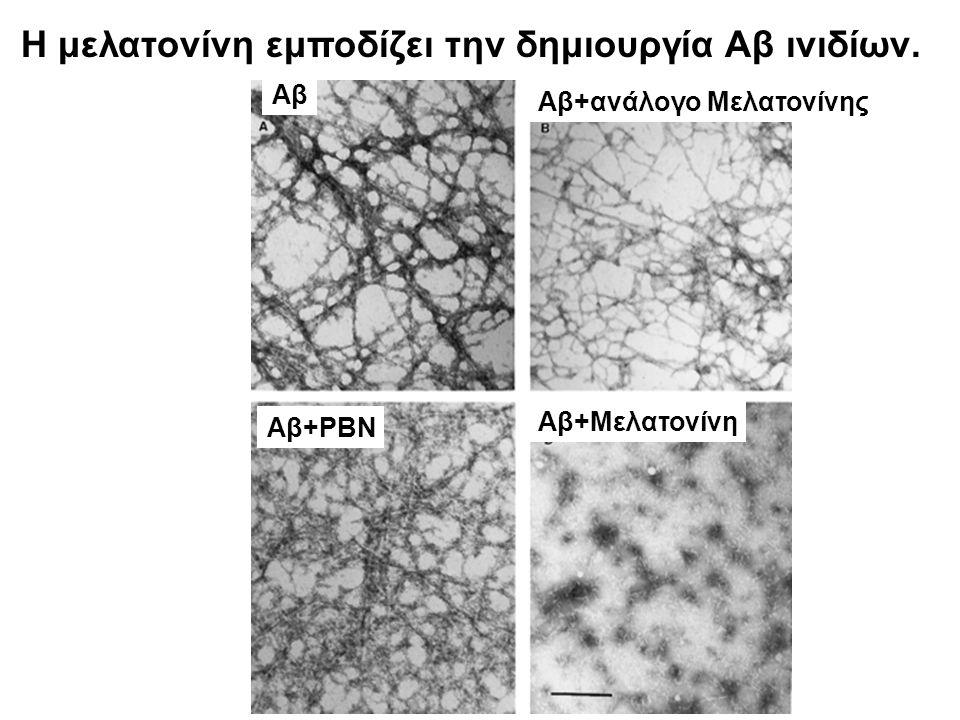 Η μελατονίνη εμποδίζει την δημιουργία Αβ ινιδίων.