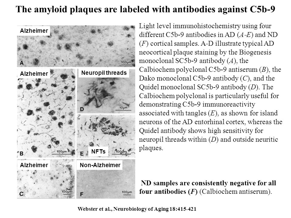 The amyloid plaques are labeled with antibodies against C5b-9