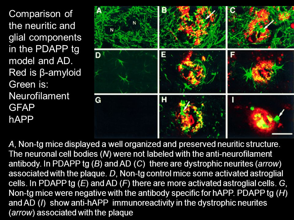 Comparison of the neuritic and glial components in the PDAPP tg model and AD.