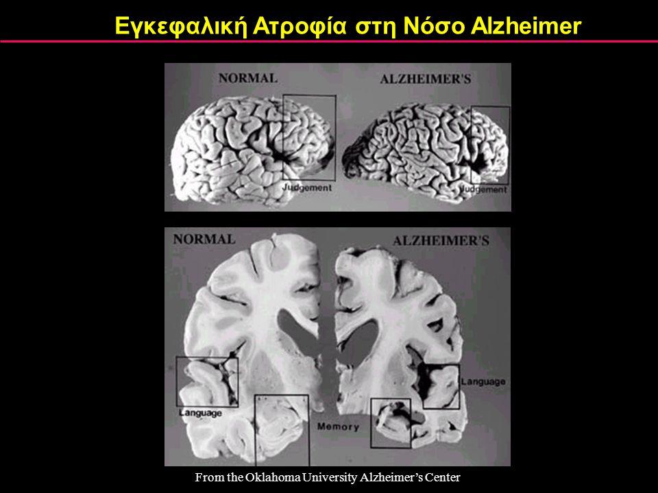 Εγκεφαλική Ατροφία στη Νόσο Alzheimer
