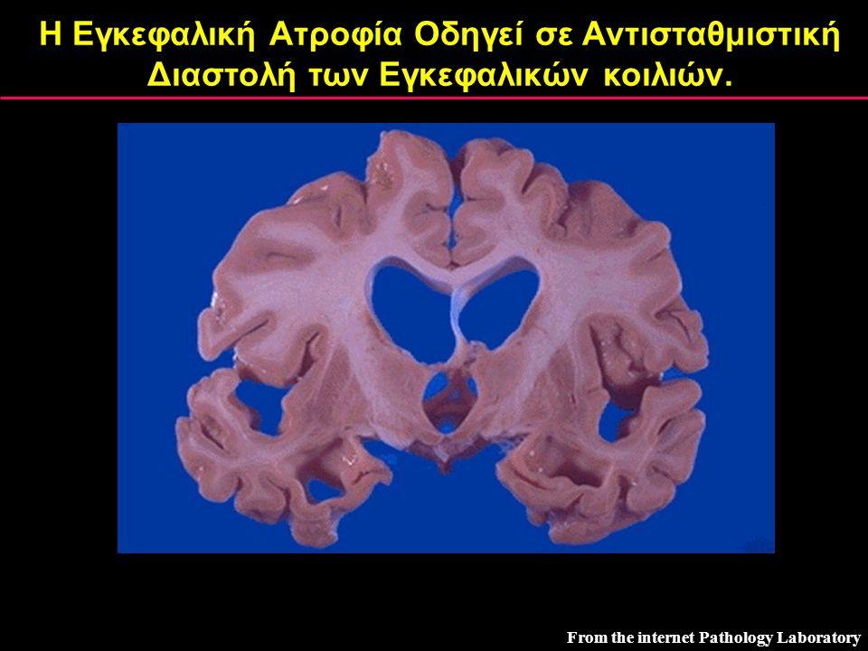 Η Εγκεφαλική Ατροφία Οδηγεί σε Αντισταθμιστική Διαστολή των Εγκεφαλικών κοιλιών.