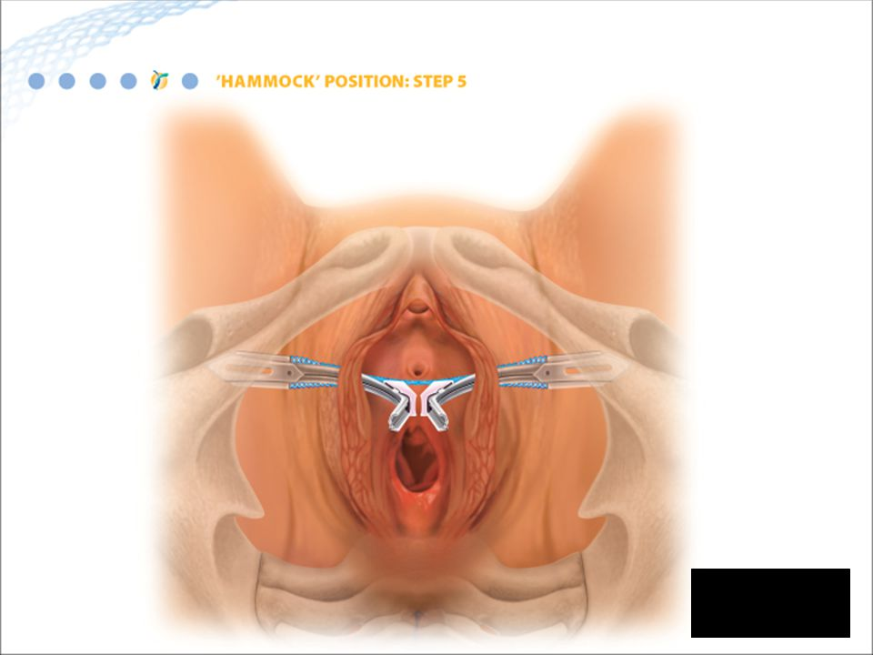 The mesh should be placed tension-free under the mid urethra