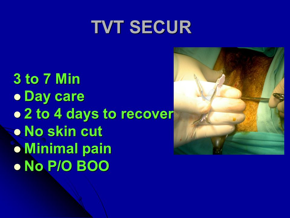 TVT SECUR 3 to 7 Min Day care 2 to 4 days to recover No skin cut