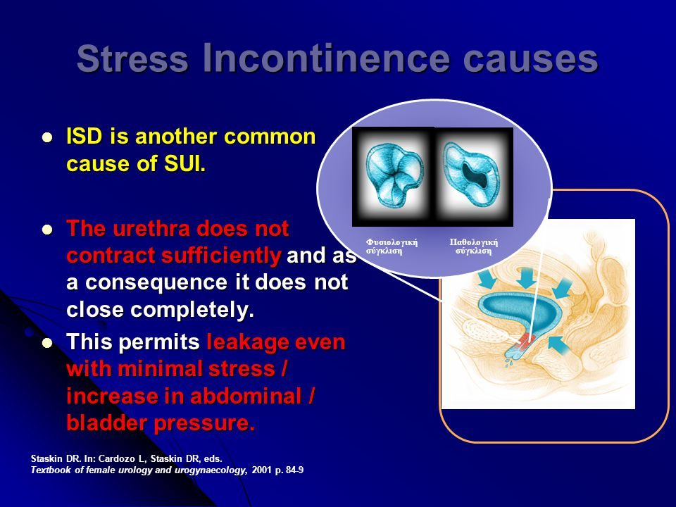 Stress Incontinence causes