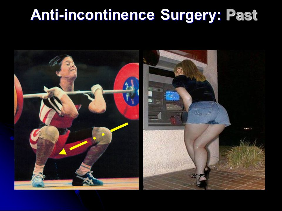 Anti-incontinence Surgery: Past