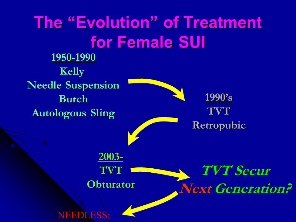 The Evolution of Treatment for Female SUI