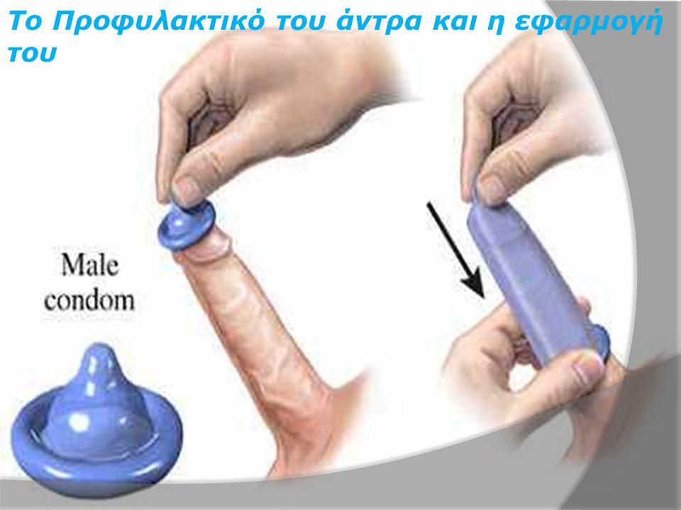 Το Προφυλακτικό του άντρα και η εφαρμογή του