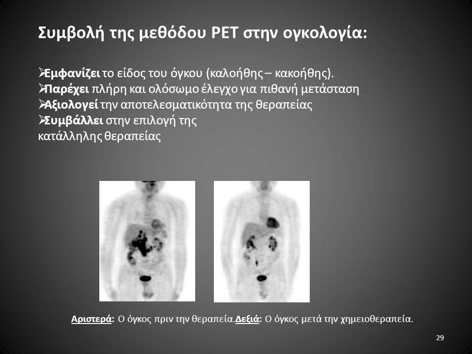 Συμβολή της μεθόδου PET στην ογκολογία: