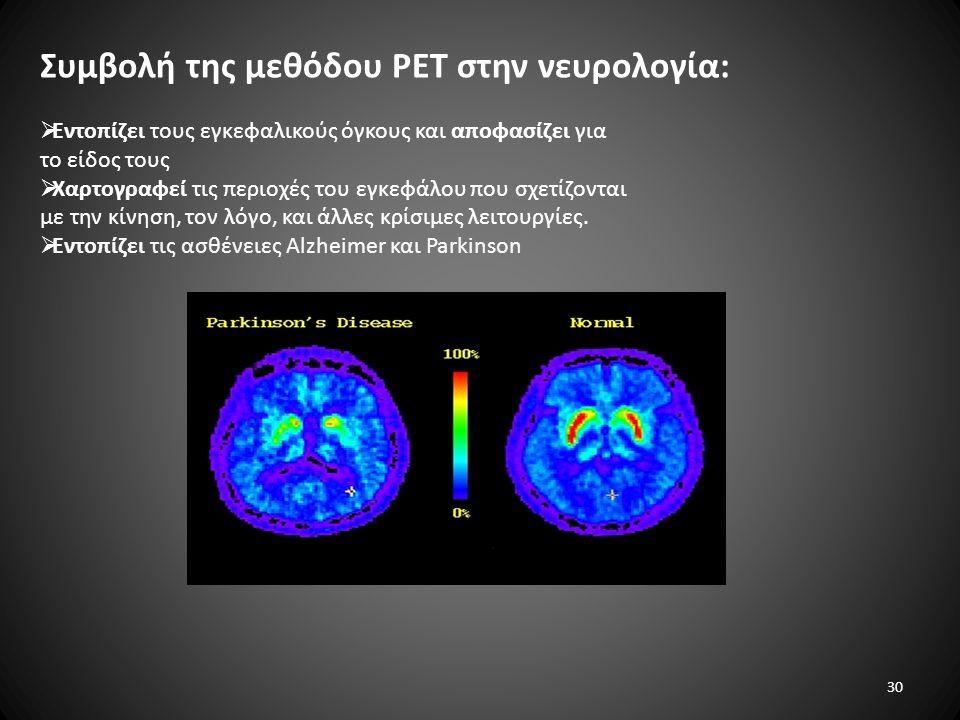 Συμβολή της μεθόδου PET στην νευρολογία: