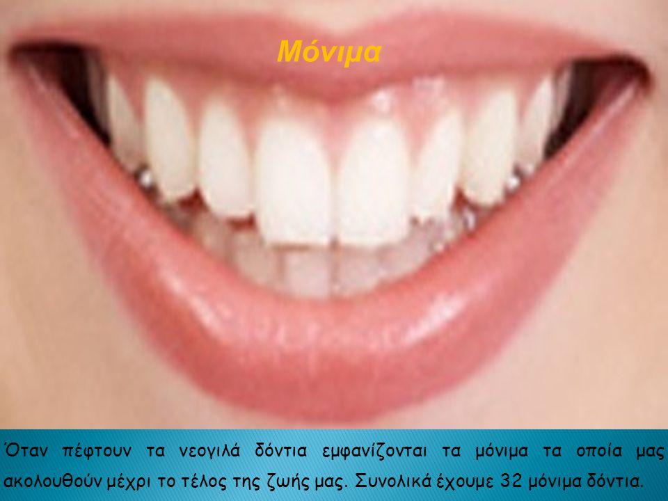 Μόνιμα Όταν πέφτουν τα νεογιλά δόντια εμφανίζονται τα μόνιμα τα οποία μας ακολουθούν μέχρι το τέλος της ζωής μας.