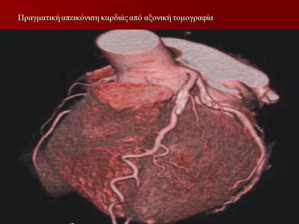 Πραγματική απεικόνιση καρδιάς από αξονική τομογραφία