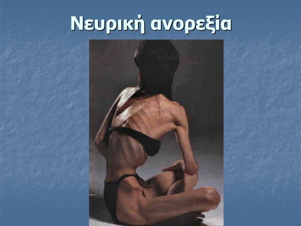 Νευρική ανορεξία