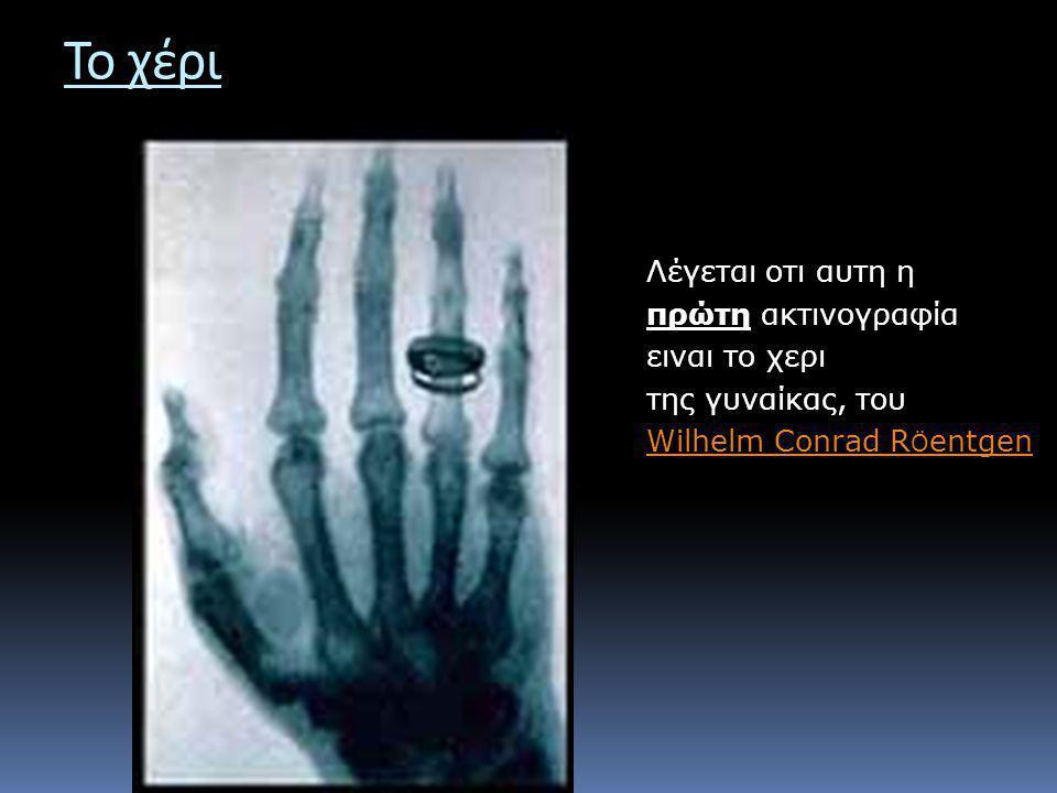 Το χέρι Λέγεται οτι αυτη η πρώτη ακτινογραφία ειναι το χερι