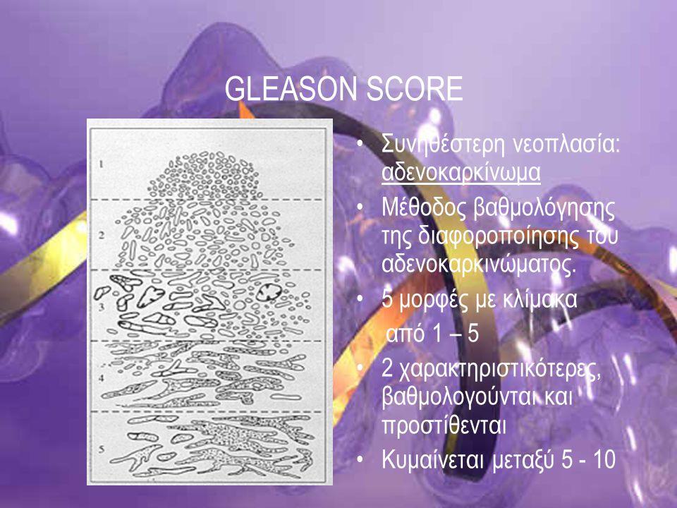 GLEASON SCORE Συνηθέστερη νεοπλασία: αδενοκαρκίνωμα