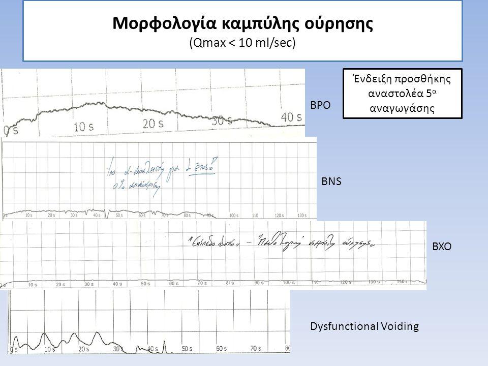 Μορφολογία καμπύλης ούρησης (Qmax < 10 ml/sec)