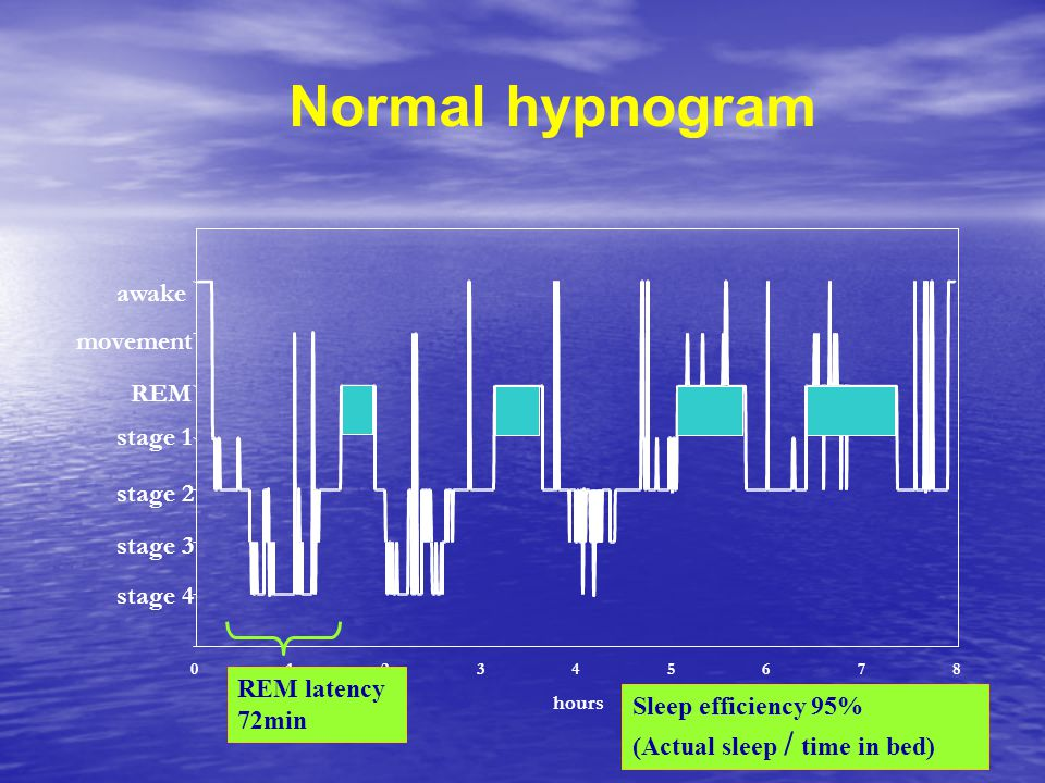 Normal hypnogram awake movement REM stage 1 stage 2 stage 3 stage 4
