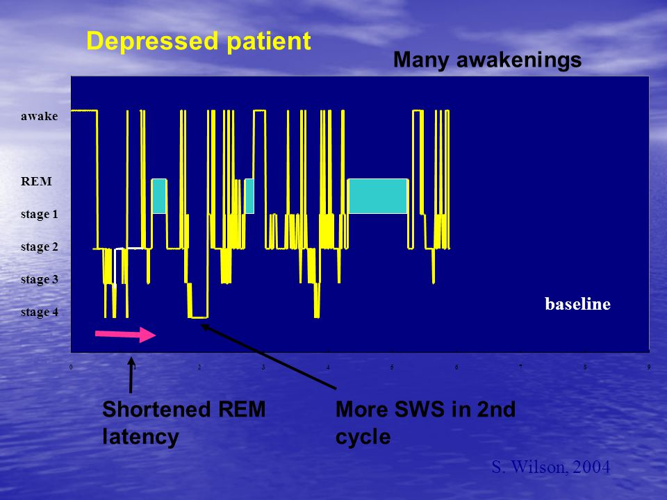 Depressed patient Many awakenings Shortened REM latency