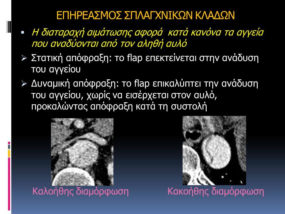ΕΠΗΡΕΑΣΜΟΣ ΣΠΛΑΓΧΝΙΚΩΝ ΚΛΑΔΩΝ