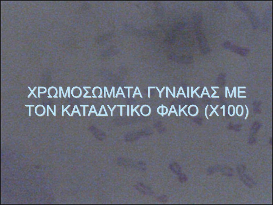 ΧΡΩΜΟΣΩΜΑΤΑ ΓΥΝΑΙΚΑΣ ΜΕ ΤΟΝ ΚΑΤΑΔΥΤΙΚΟ ΦΑΚΟ (Χ100)