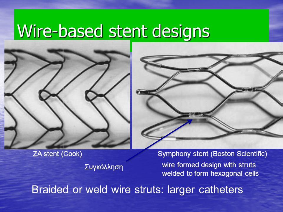 Wire-based stent designs