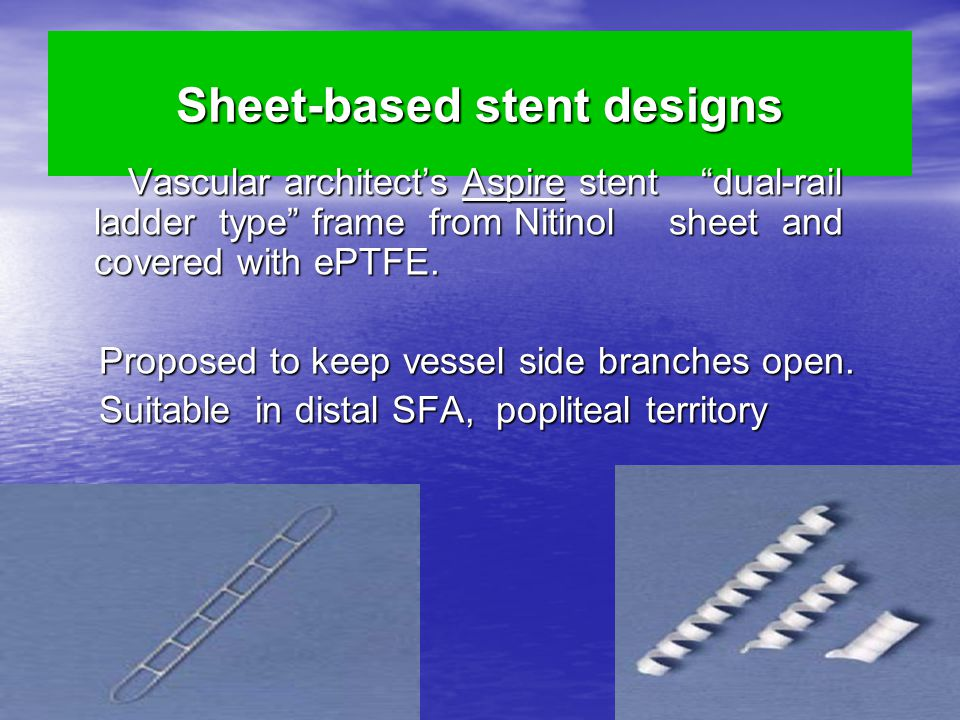 Sheet-based stent designs