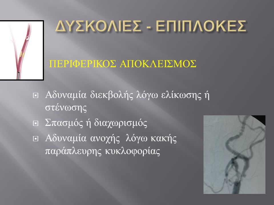 ΠΕΡΙΦΕΡΙΚΟΣ ΑΠΟΚΛΕΙΣΜΟΣ