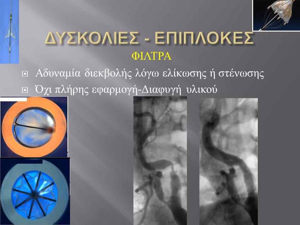 ΔΥΣΚΟΛΙΕΣ - ΕΠΙΠΛΟΚΕΣ ΦΙΛΤΡΑ