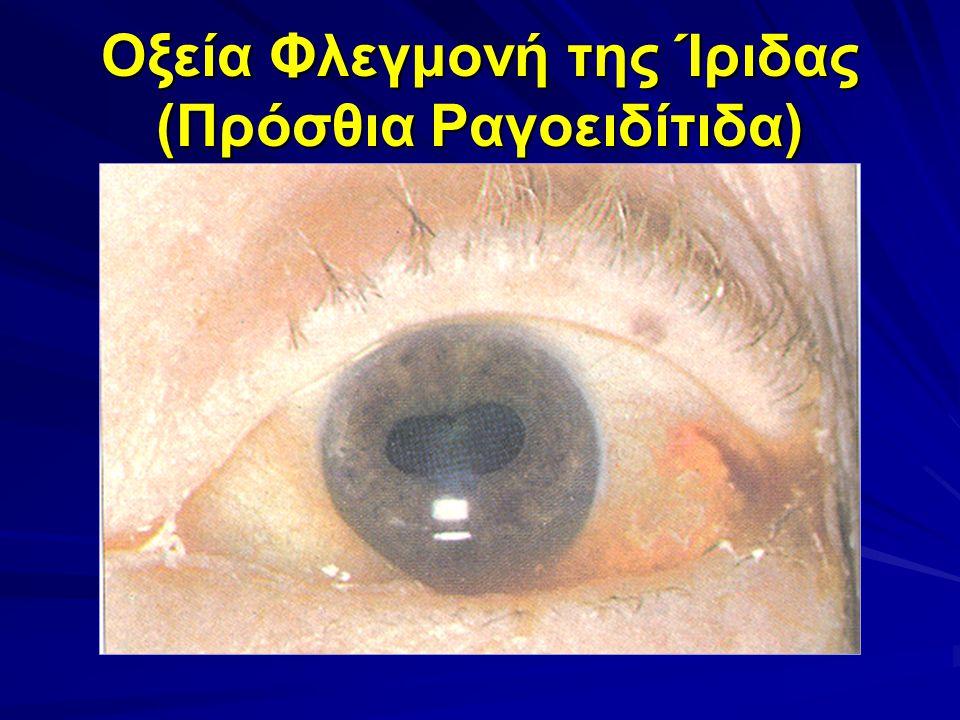 Οξεία Φλεγμονή της Ίριδας (Πρόσθια Ραγοειδίτιδα)