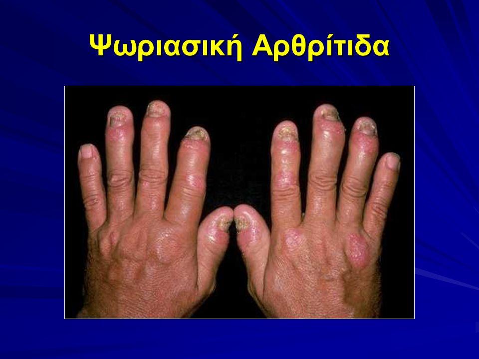 Ψωριασική Αρθρίτιδα