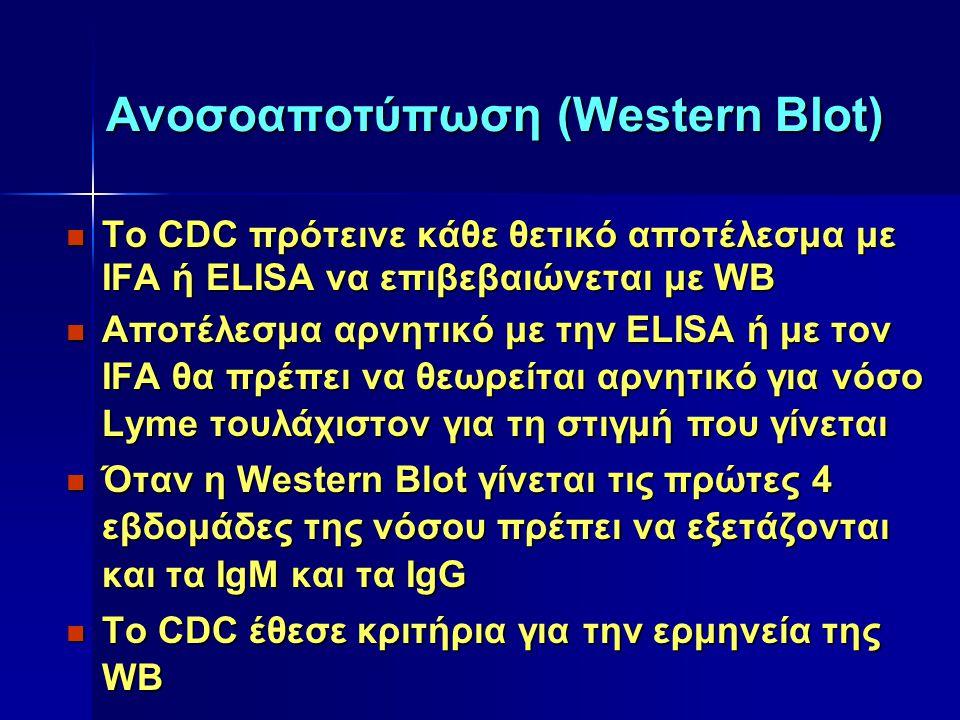 Ανοσοαποτύπωση (Western Blot)