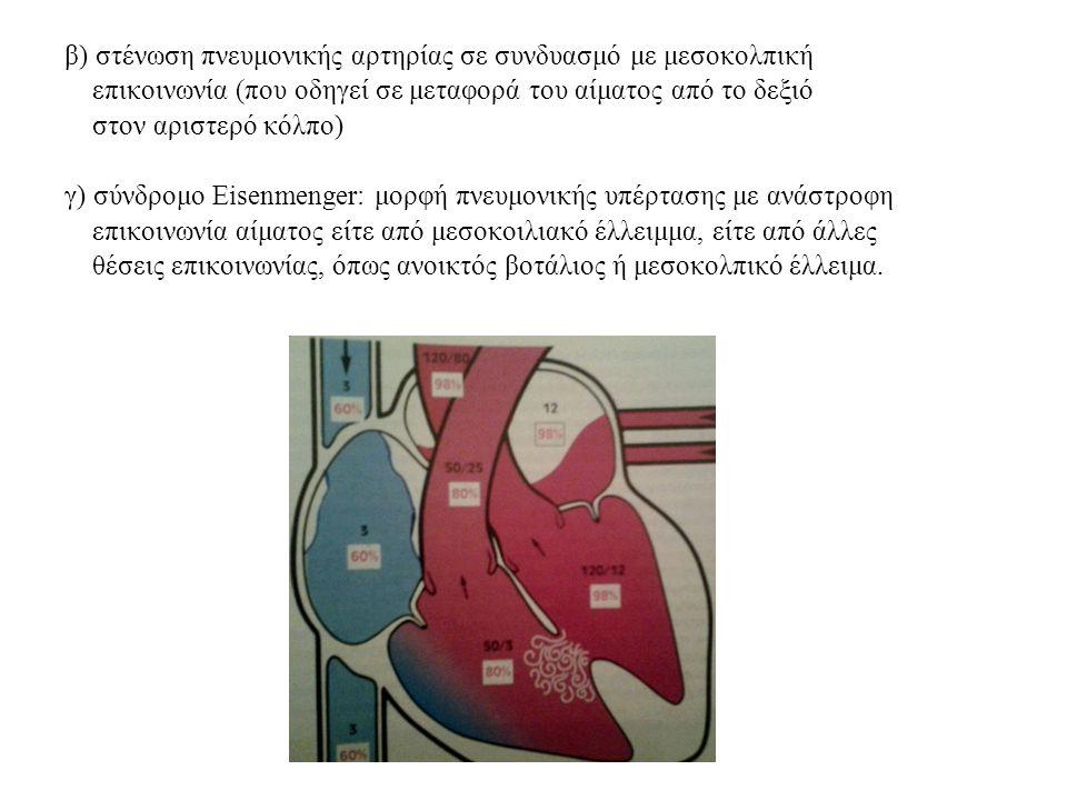β) στένωση πνευμονικής αρτηρίας σε συνδυασμό με μεσοκολπική