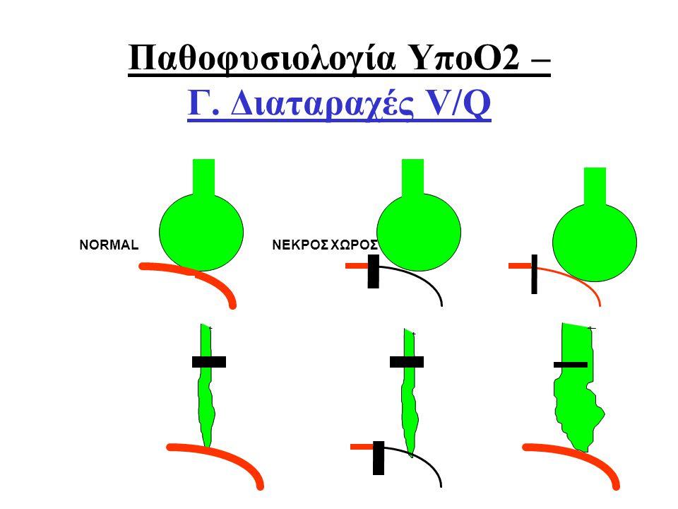 Παθοφυσιολογία ΥποΟ2 – Γ. Διαταραχές V/Q