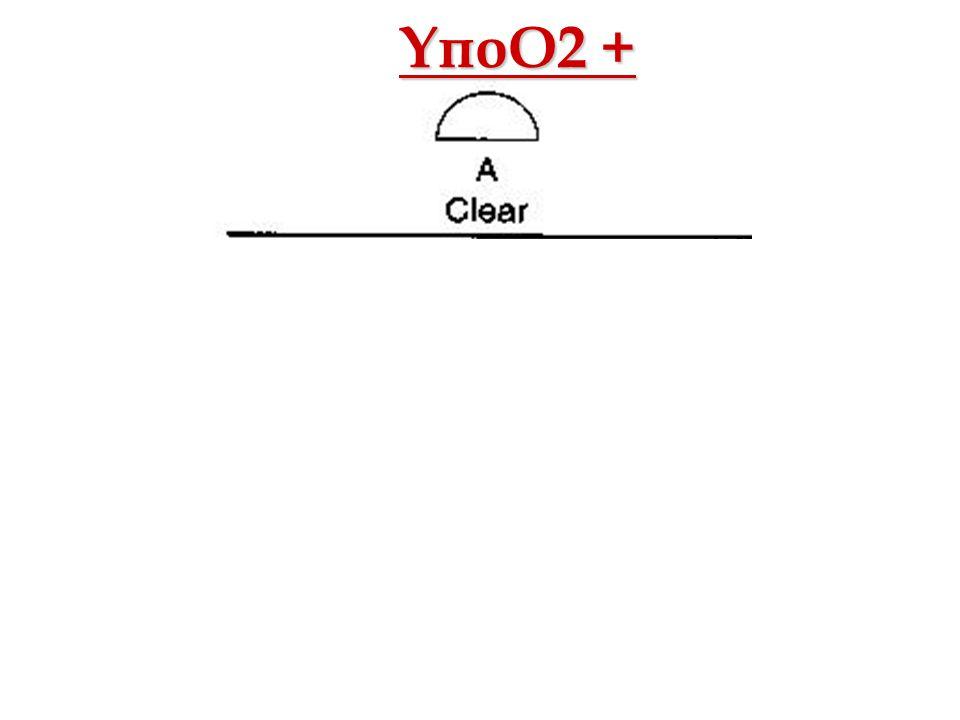 ΥποΟ2 + Οξ. Αναπνευστική Ανεπάρκεια Αθ. Πρεκατές