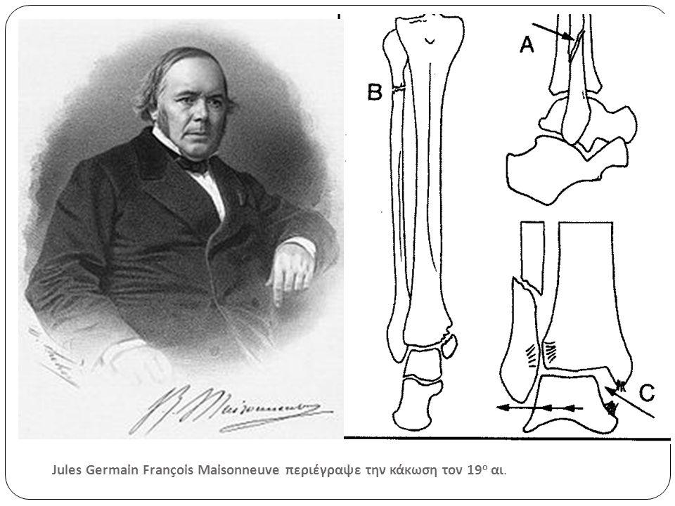 Jules Germain François Maisonneuve περιέγραψε την κάκωση τον 19ο αι.