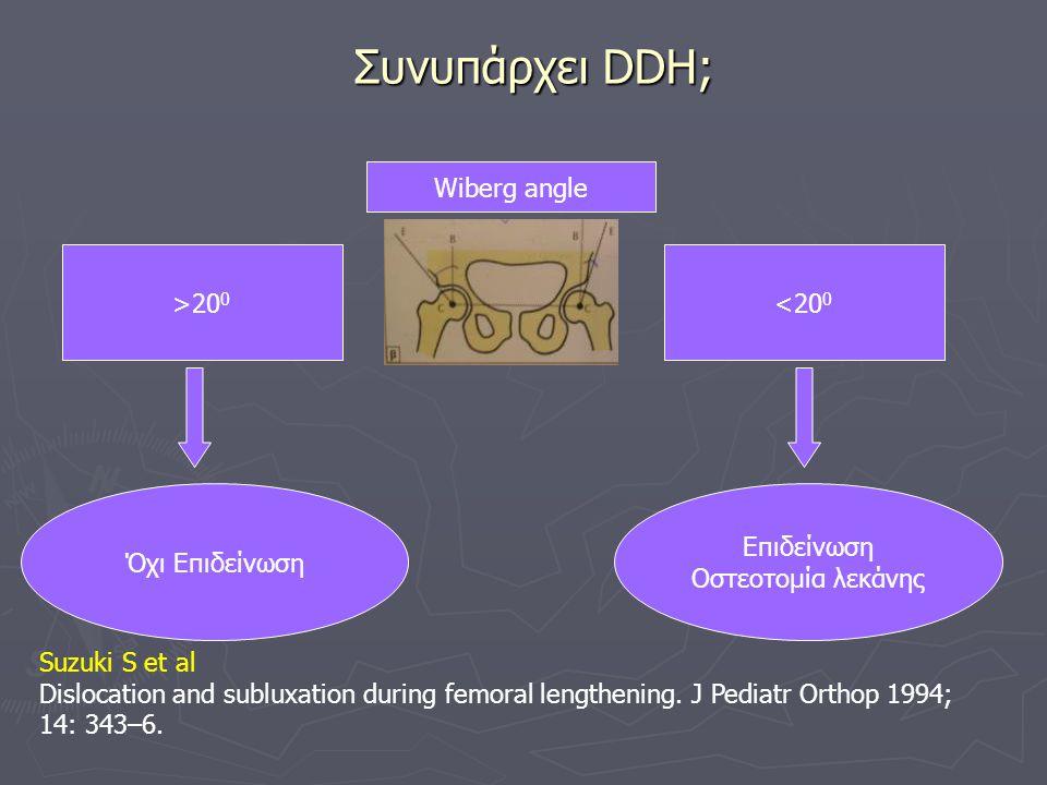 Συνυπάρχει DDH; Wiberg angle >200 <200 Όχι Επιδείνωση Επιδείνωση