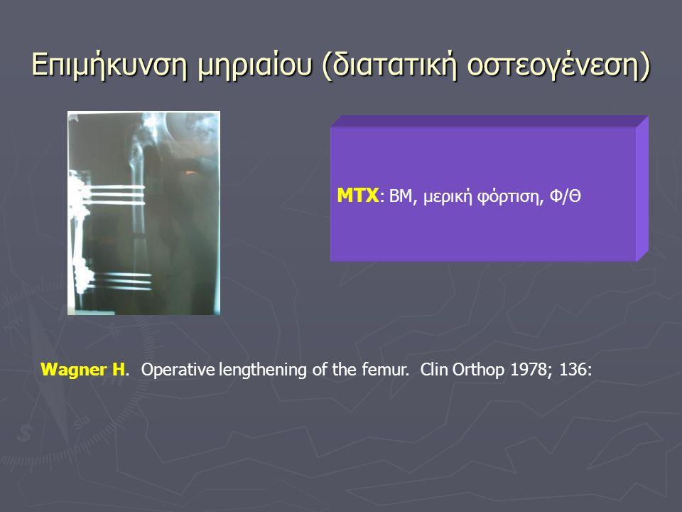 Επιμήκυνση μηριαίου (διατατική οστεογένεση)