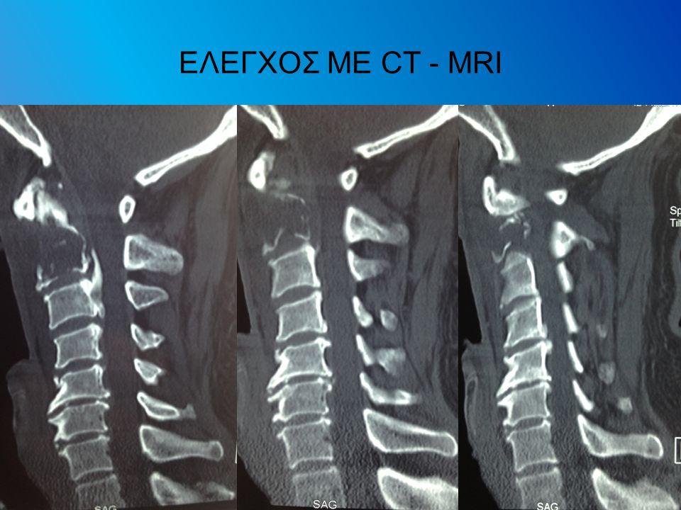 ΕΛΕΓΧΟΣ ΜΕ CT - MRI
