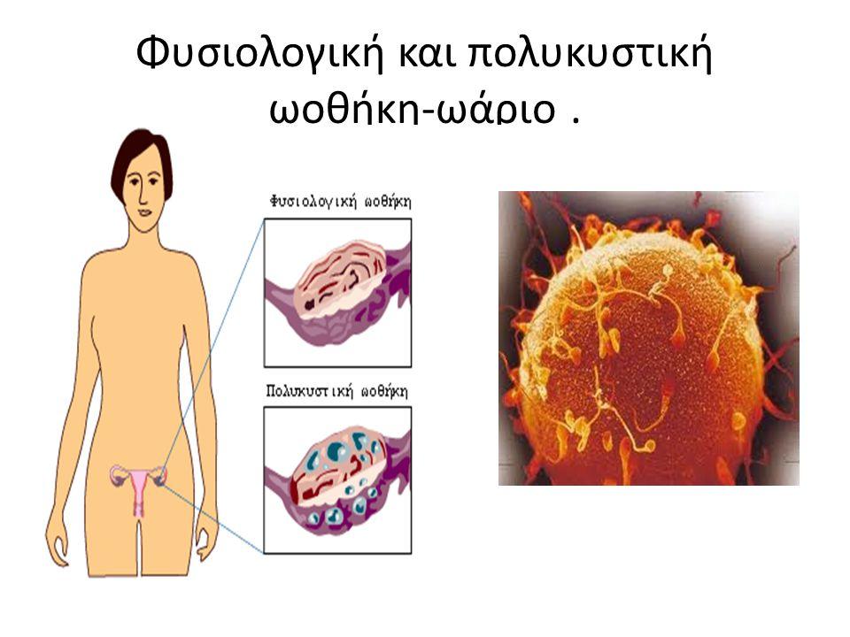 Φυσιολογική και πολυκυστική ωοθήκη-ωάριο .