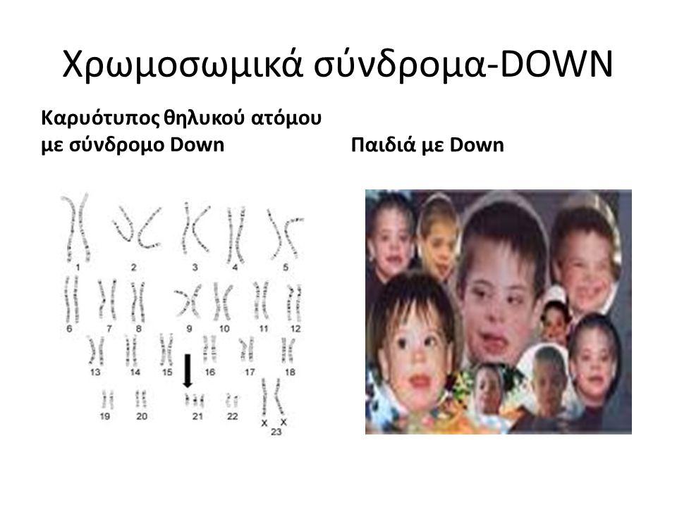 Χρωμοσωμικά σύνδρομα-DOWN