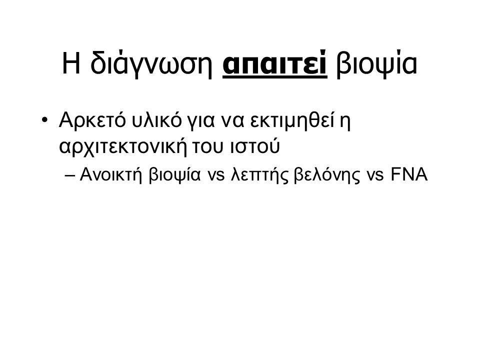 H διάγνωση απαιτεί βιοψία