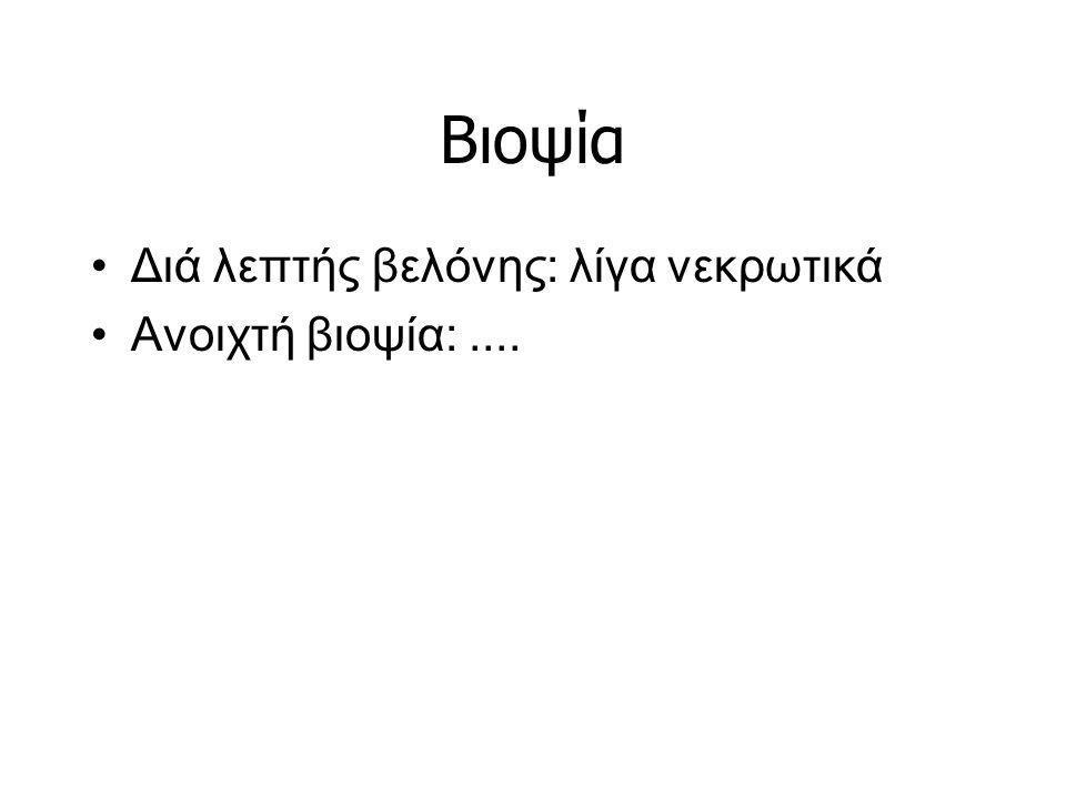 Βιοψία Διά λεπτής βελόνης: λίγα νεκρωτικά Ανοιχτή βιοψία: ....