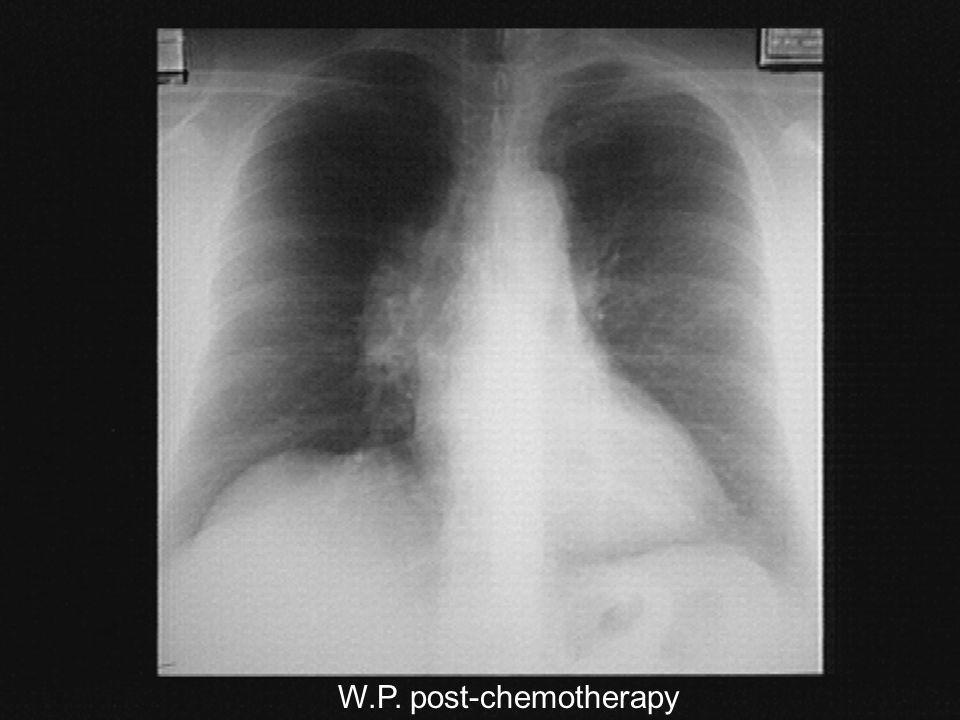 W.P. post-chemotherapy