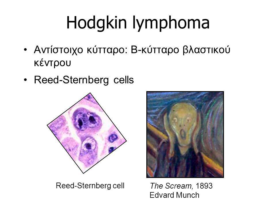 Hodgkin lymphoma Αντίστοιχο κύτταρο: B-κύτταρο βλαστικού κέντρου