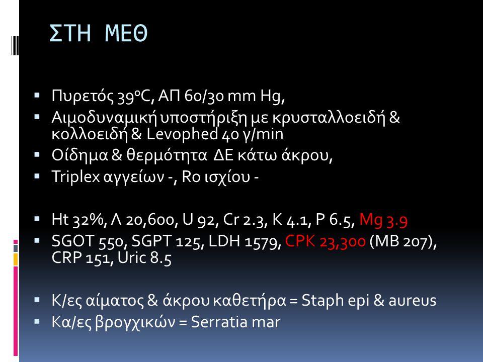 ΣΤΗ ΜΕΘ Πυρετός 39oC, ΑΠ 60/30 mm Hg,